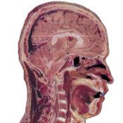 Visuel Table Anatomage