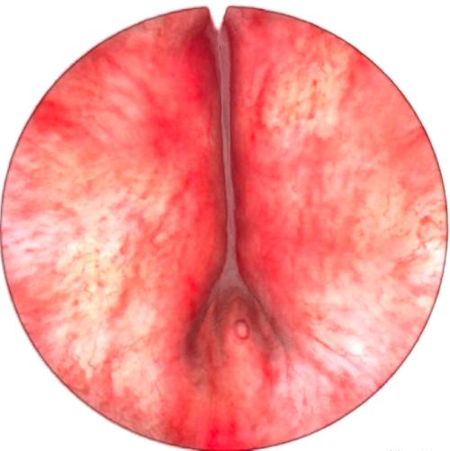 TURPSim - Simulateur de Résection Trans-Urétrale de Prostate