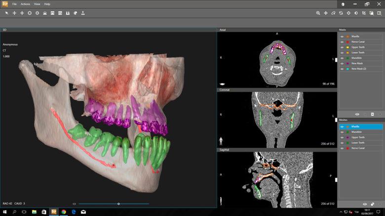 D2P - Dicom To Print - Logiciel de modélisation 3D