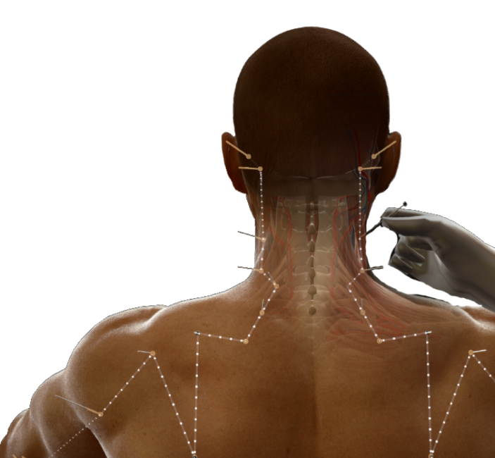 Acumap - Simulateur d'Acupuncture - Twin Medical