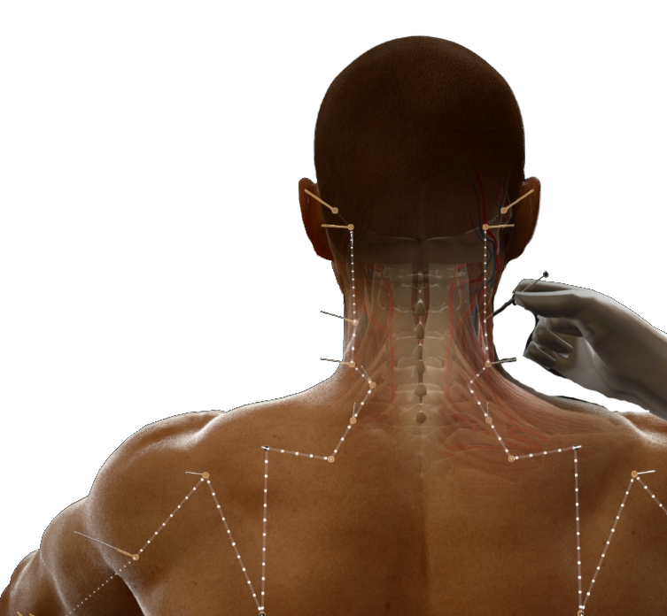 Acumap - Simulateur d'Acupuncture - Twin Medical