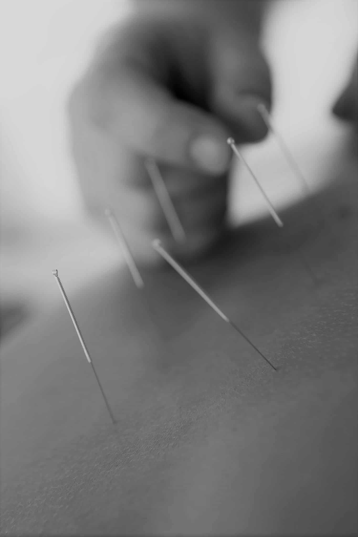 Simulateurs d'Acupuncture - Twin Medical